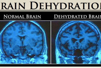 brain dehyration